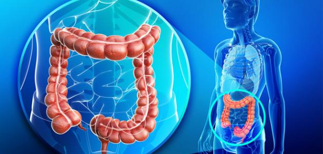 صورة جديد علاج التهاب القولون
