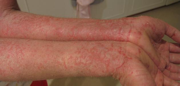 صورة جديد ما هو علاج الأكزيما