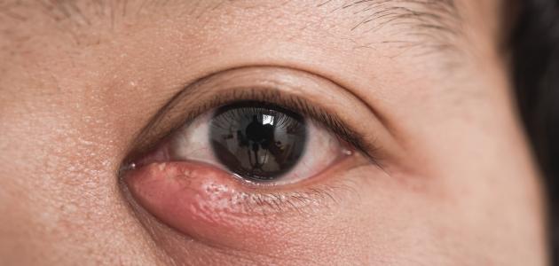 صورة جديد أضرار حساسية العين