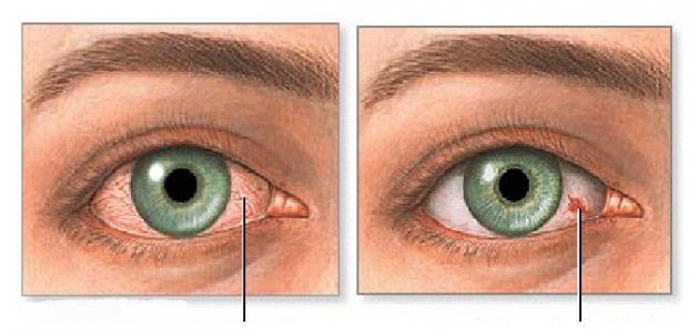 صورة جديد ما سبب اصفرار العين