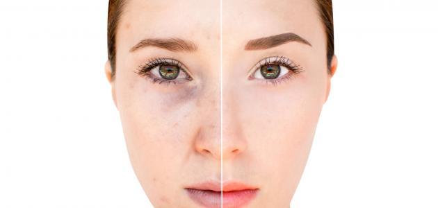 صورة جديد ما علاج تصبغات الوجه