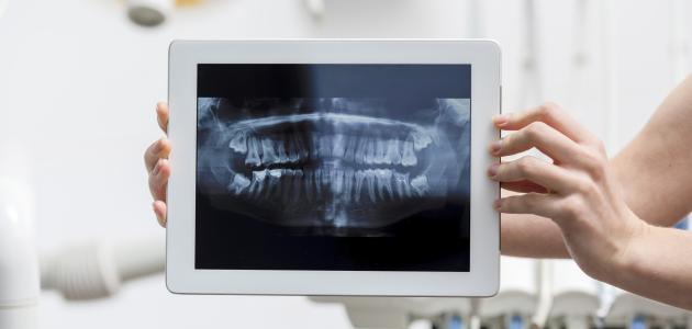 صورة جديد كم عدد أسنان الإنسان