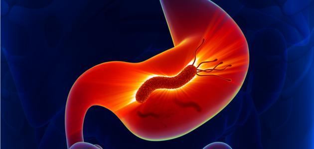صورة جديد أعراض جرثومة المعدة بالتفصيل