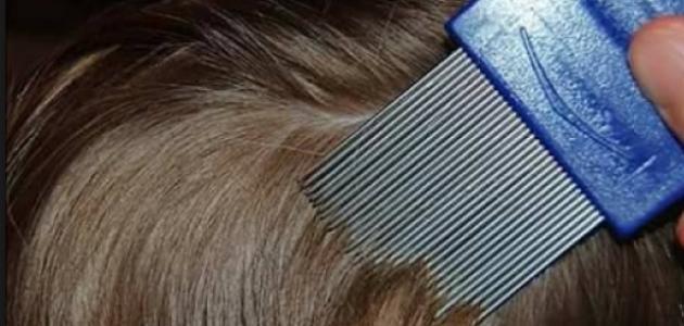 صورة جديد كيفية علاج قمل الرأس