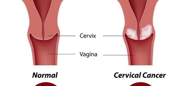 صورة جديد أعراض سرطان الرحم