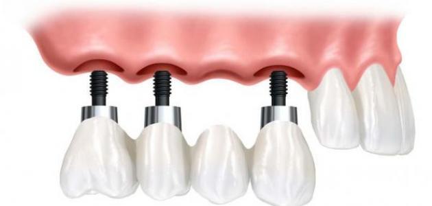 صورة جديد كيف تتم زراعة الأسنان