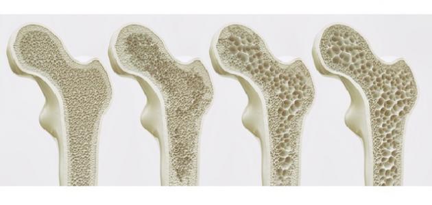 صورة جديد بحث عن هشاشة العظام