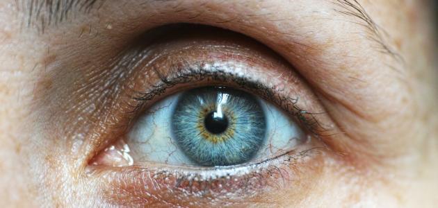 صورة جديد أسرع طريقة لعلاج الهالات السوداء