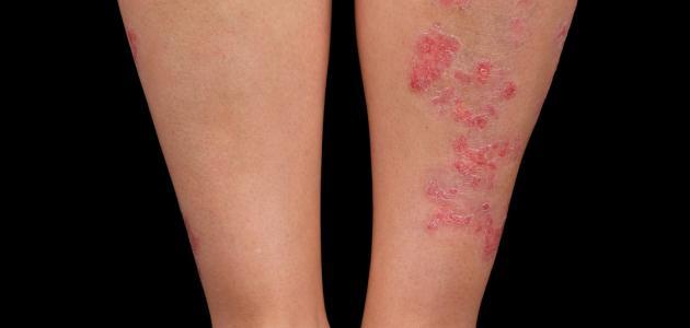 صورة جديد ما هي الأكزيما الجلدية