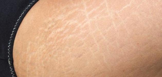 صورة جديد أسباب الخطوط البيضاء في الجسم