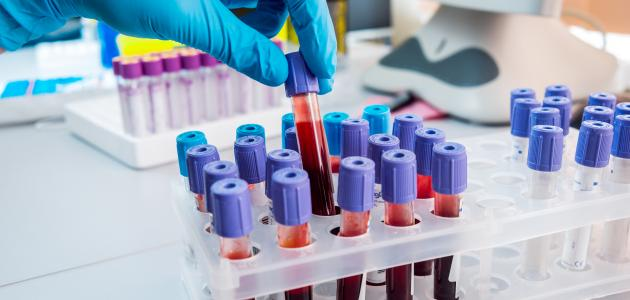 صورة جديد ما هو تحليل غازات الدم