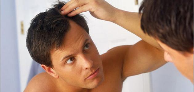 صورة جديد طرق زيادة كثافة الشعر للرجال