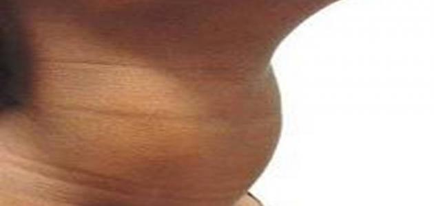 صورة جديد أعراض تضخم الغدة الدرقية عند النساء