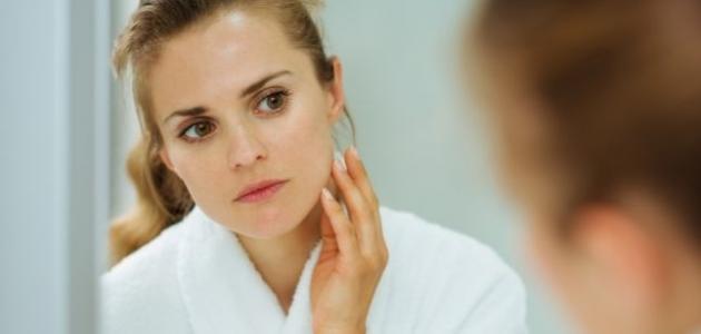 صورة جديد كيف أتخلص من شحوب الوجه