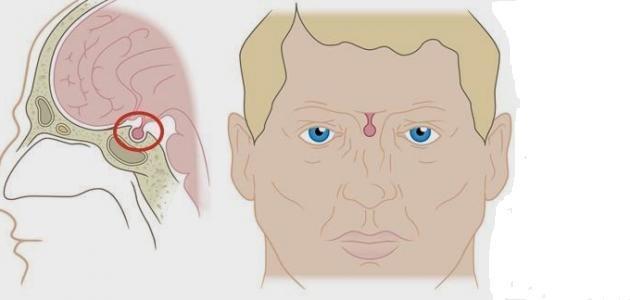 صورة جديد ما هي أعراض ورم الغدة النخامية