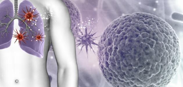 صورة جديد ما هي أمراض الرئة