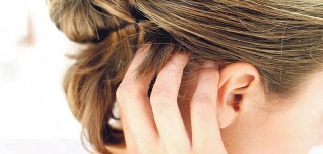 صورة جديد ما هو علاج حكة فروة الرأس