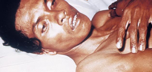 صورة جديد مسبب مرض الكوليرا