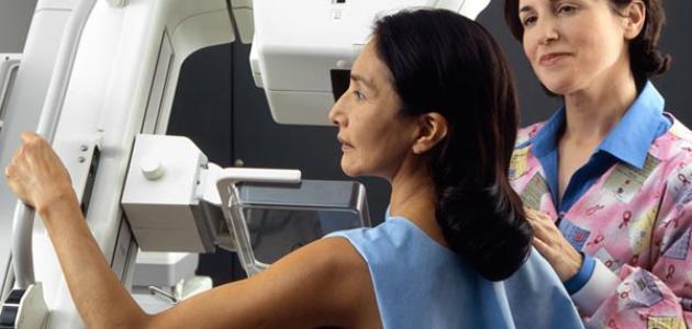 صورة جديد ما هو سرطان الثدي