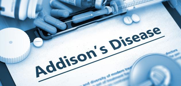 صورة جديد مرض اديسون