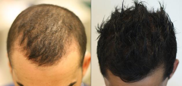 صورة جديد كيف تتم عملية زراعة الشعر