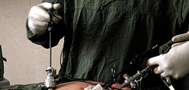 صورة جديد جراحة المنظار – فيديو