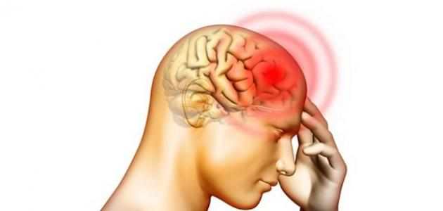 صورة جديد ما هي أعراض جلطة الدماغ