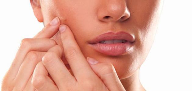 صورة ما علاج الحبوب في الوجه