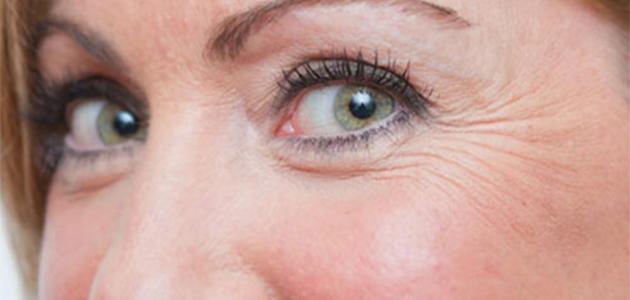 صورة وصفات لإزالة تجاعيد تحت العين