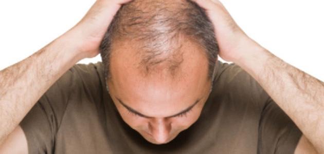 صورة كيف تعالج تساقط الشعر للرجال