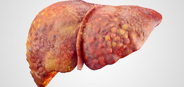 صورة ما أسباب تليف الكبد