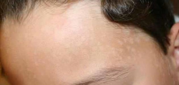 صورة ما هو سبب ظهور بقع بيضاء على الوجه