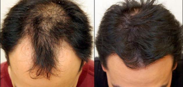 صورة علاج تساقط الشعر والصلع