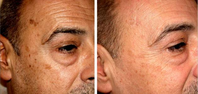 صورة إزالة البقع من الوجه بسرعة