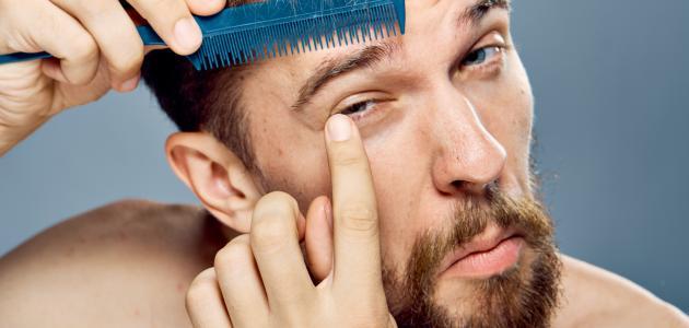 صورة ما سبب تساقط شعر الحواجب