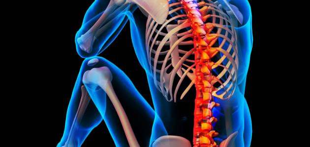 صورة هشاشة العظام والعمود الفقري