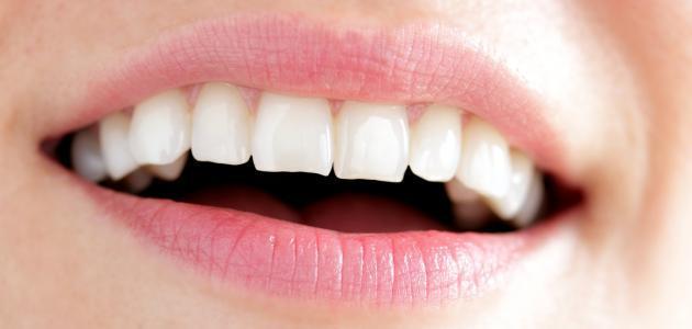 صورة أسهل طريقة لتبييض الأسنان