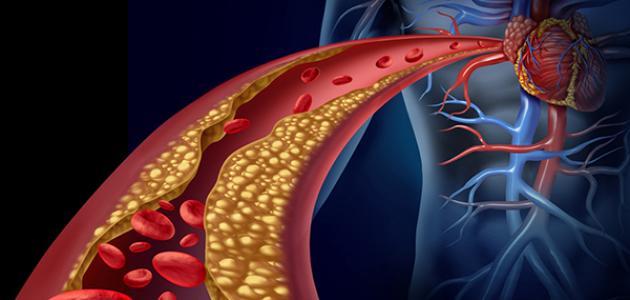 صورة ما هو علاج الكولسترول