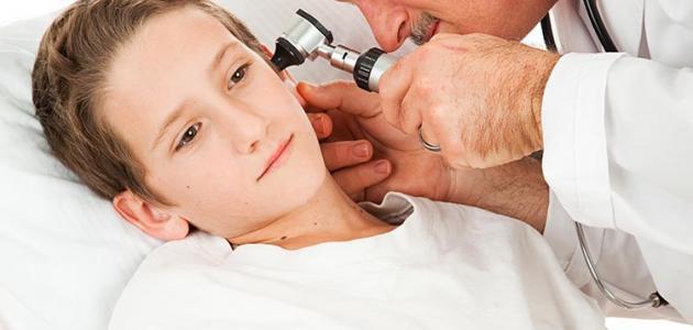 صورة ما هي أعراض التهاب الأذن الوسطى