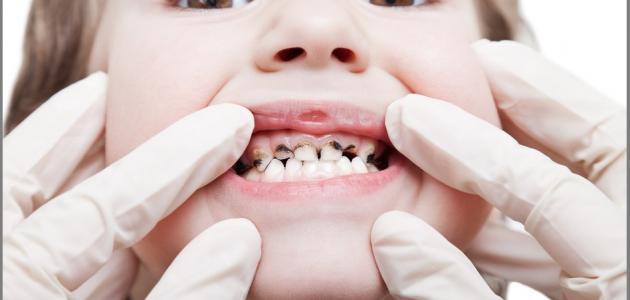 صورة كيف أعالج تسوس الأسنان