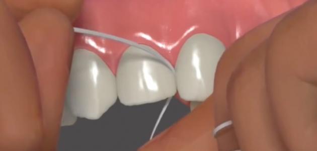 صورة ما بعد تقويم الأسنان