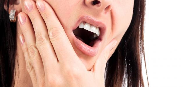 صورة علاج حمو الفم