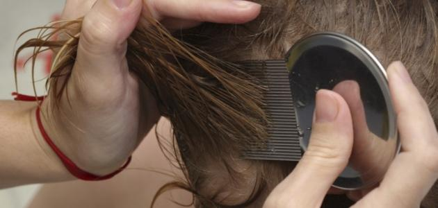 صورة علاج قمل الشعر نهائياً