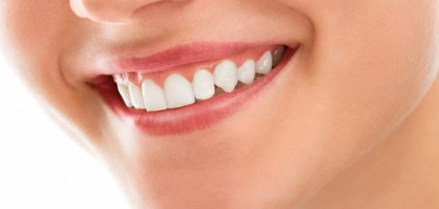 صورة إزالة جير الأسنان بدون طبيب