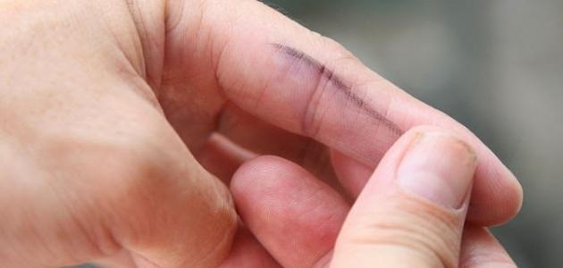 صورة كيف أزيل الحبر عن اليد