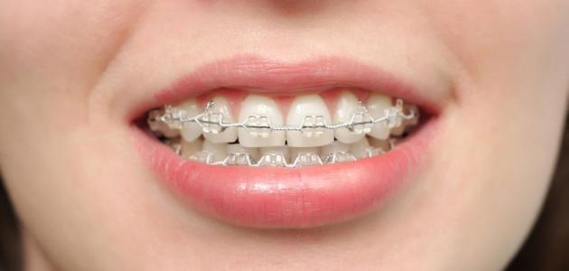 صورة كيف يعمل تقويم الأسنان