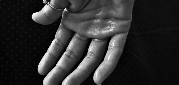 صورة لماذا تتعرق اليدين