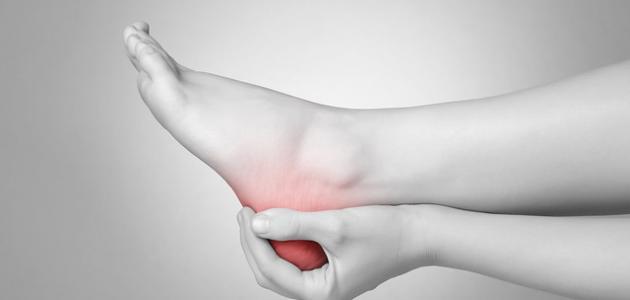 صورة التهاب الوتر الأخمصي في القدم