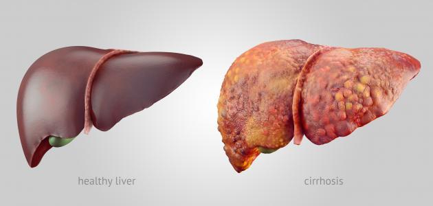 صورة ما أسباب تشمع الكبد