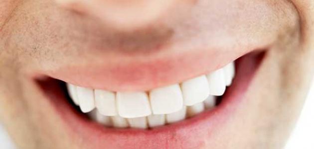 صورة تركيب الأسنان الثابتة